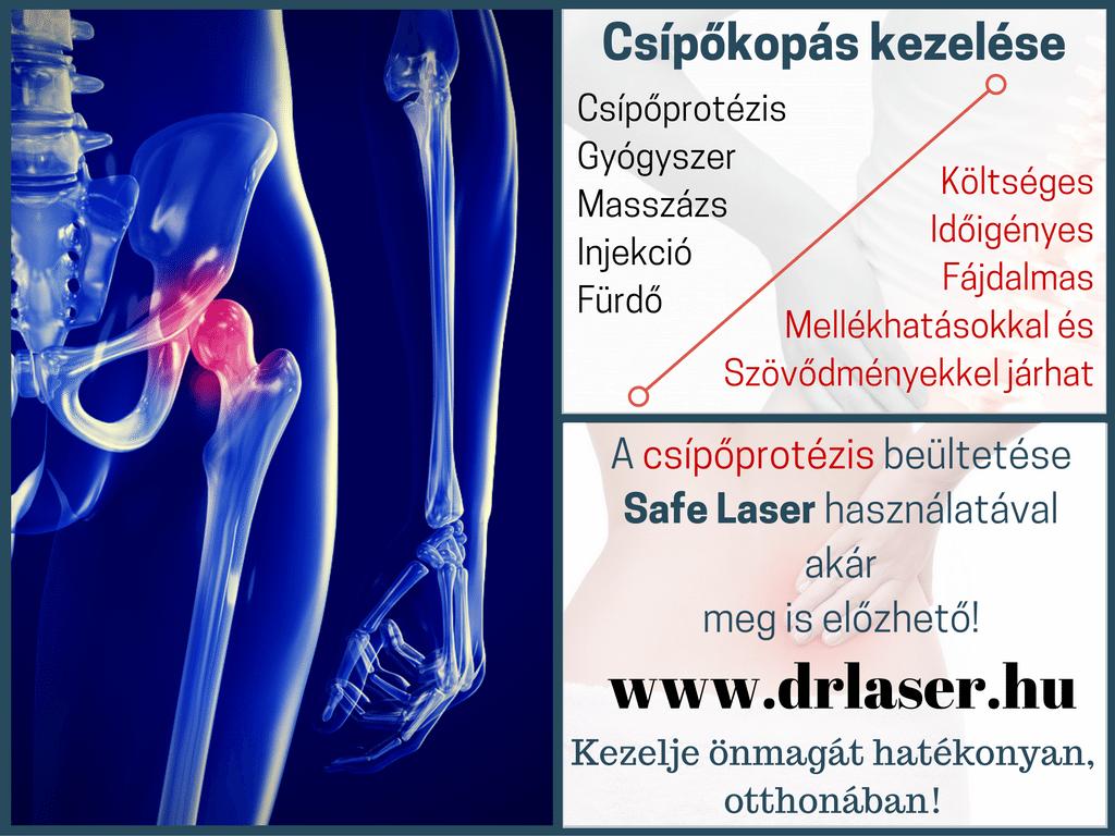 Csípőprotézis megelőzése